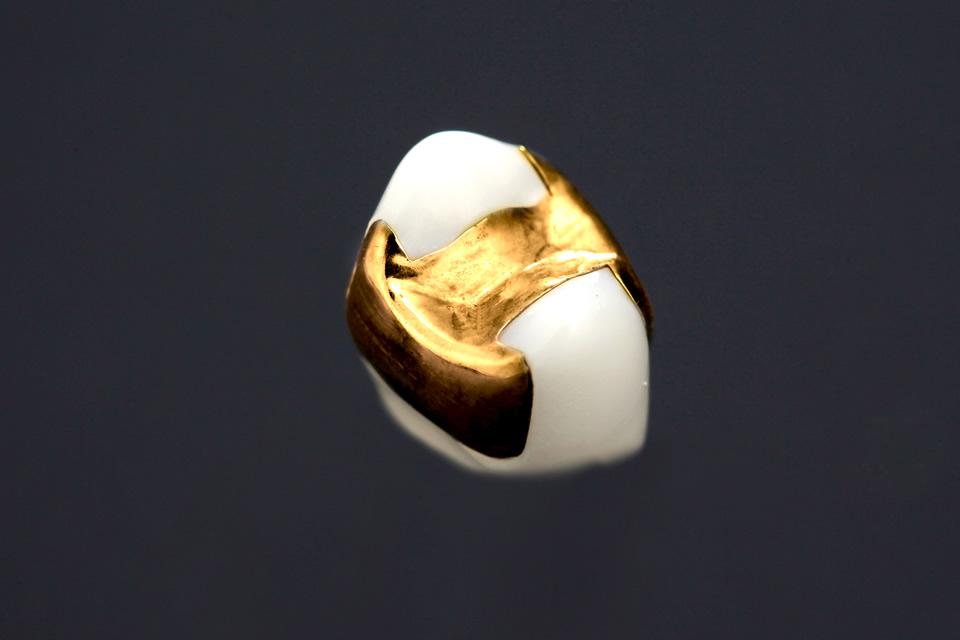 ゴールドインレー/アンレー